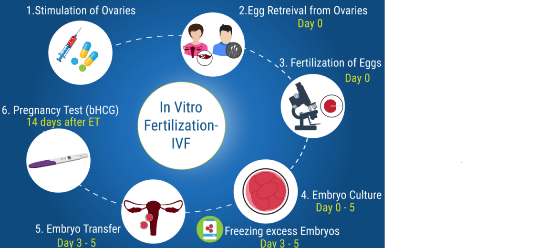 Best IVF hospital centre in Delhi Chennai Mumbai