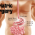 Bariatric Surgery in Delhi India