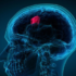 best hospital for brain tumor surgery in Delhi India