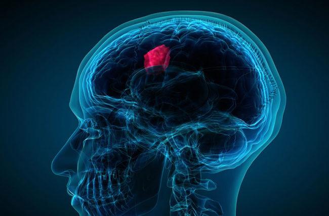 best hospital for brain tumor surgery in Delhi India