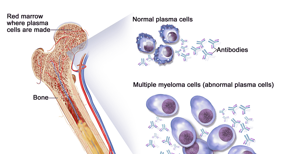 best hospital for treatment of multiple myeloma in india